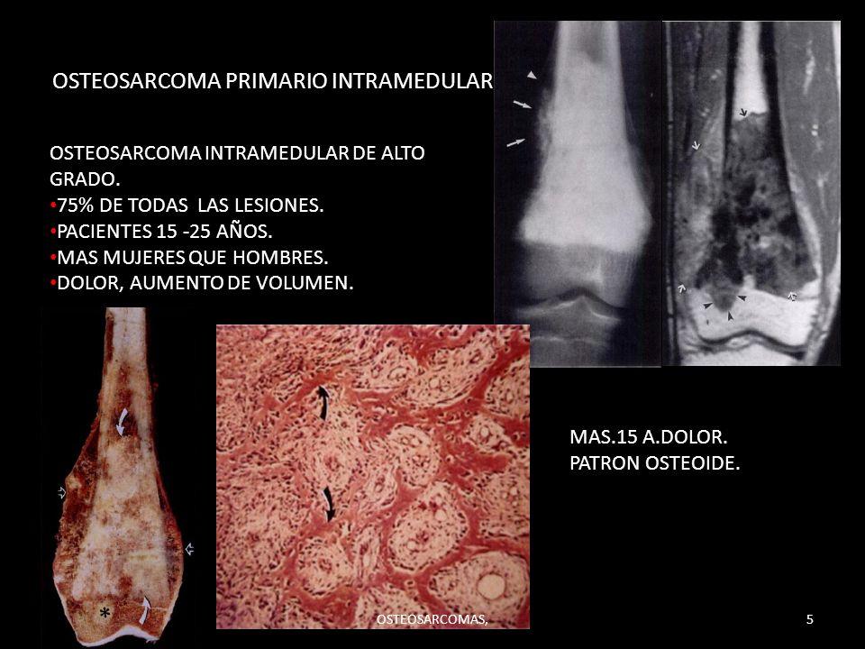 OSTEOSARCOMA PRIMARIO INTRAMEDULAR. OSTEOSARCOMA INTRAMEDULAR DE ALTO GRADO. 75% DE TODAS LAS LESIONES. PACIENTES 15 -25 AÑOS. MAS MUJERES QUE HOMBRES