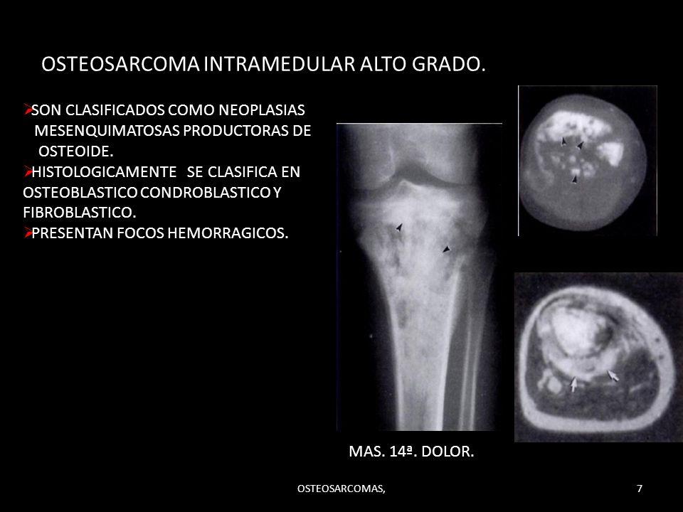 OSTEOSARCOMA INTRAMEDULAR ALTO GRADO. SON CLASIFICADOS COMO NEOPLASIAS MESENQUIMATOSAS PRODUCTORAS DE OSTEOIDE. HISTOLOGICAMENTE SE CLASIFICA EN OSTEO