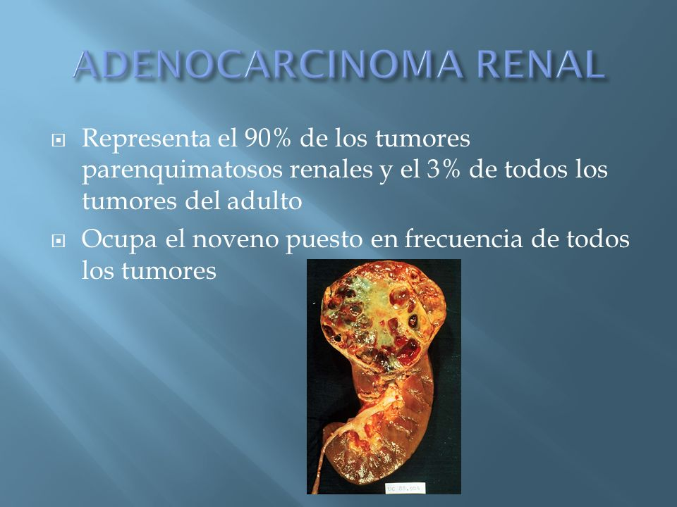 Representa el 90% de los tumores parenquimatosos renales y el 3% de todos los tumores del adulto Ocupa el noveno puesto en frecuencia de todos los tum