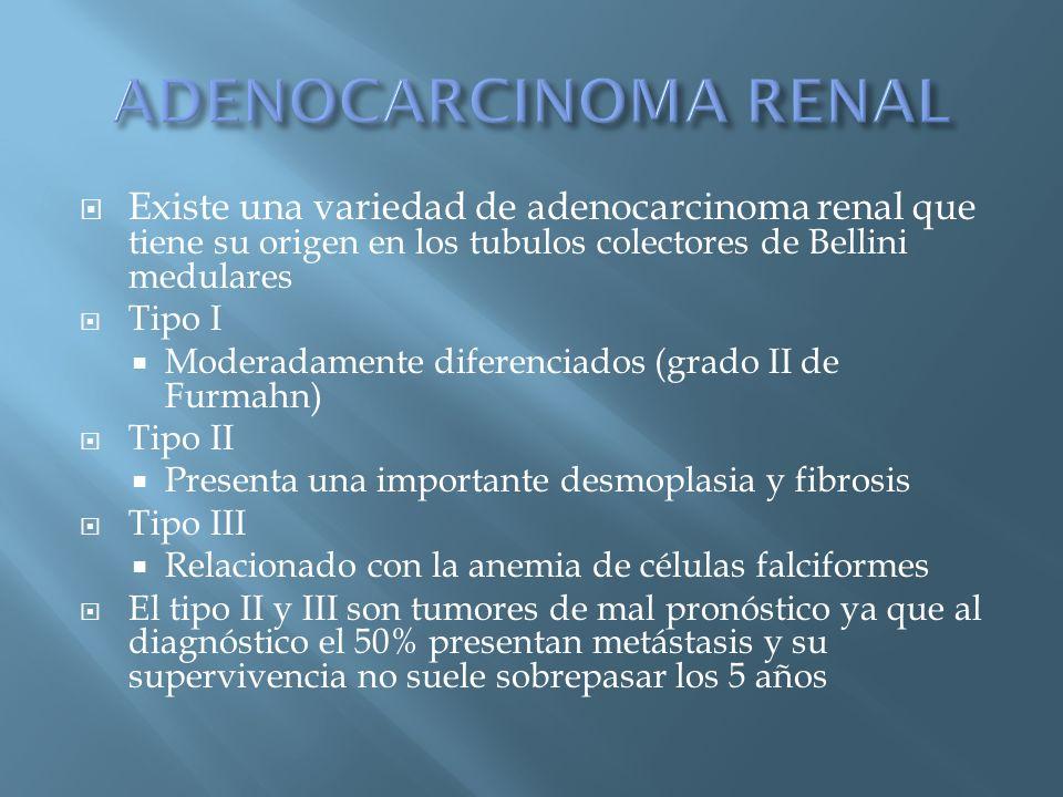 Existe una variedad de adenocarcinoma renal que tiene su origen en los tubulos colectores de Bellini medulares Tipo I Moderadamente diferenciados (gra