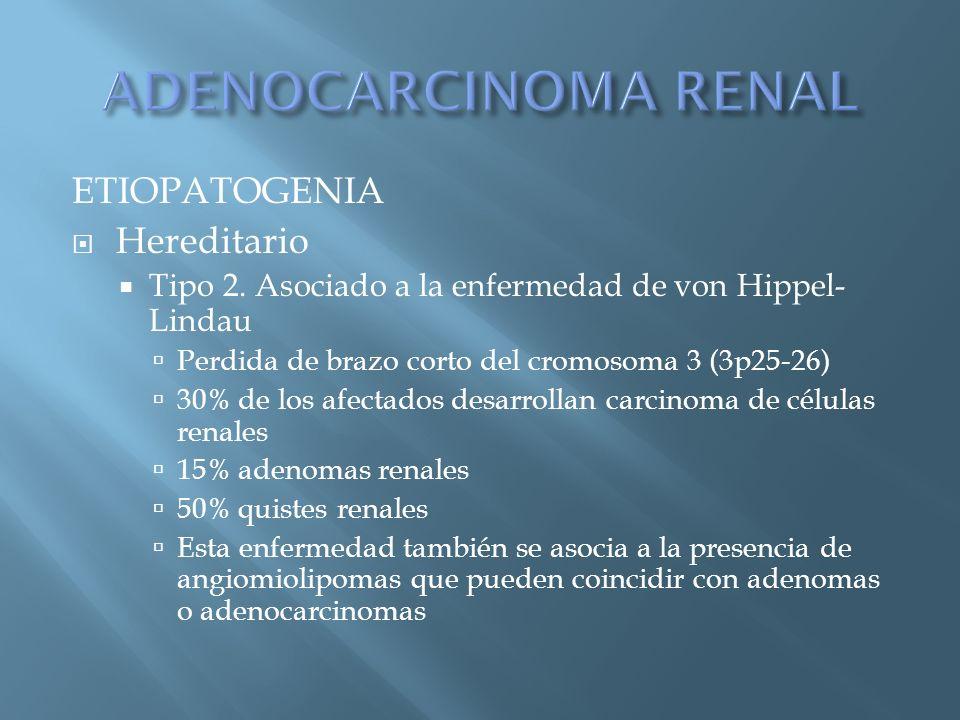 ETIOPATOGENIA Hereditario Tipo 2. Asociado a la enfermedad de von Hippel- Lindau Perdida de brazo corto del cromosoma 3 (3p25-26) 30% de los afectados