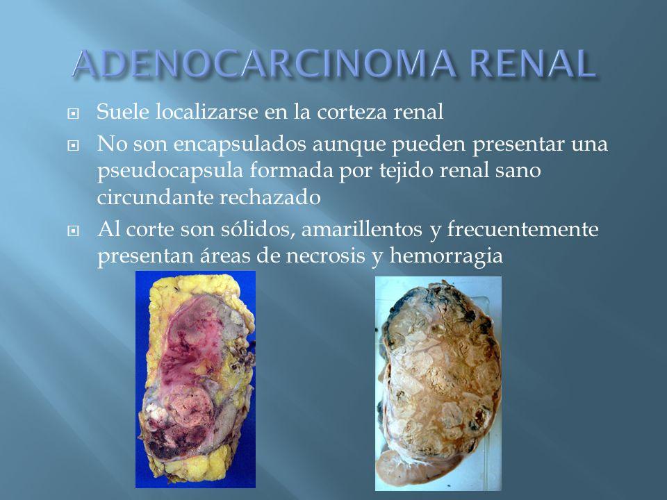 Suele localizarse en la corteza renal No son encapsulados aunque pueden presentar una pseudocapsula formada por tejido renal sano circundante rechazad