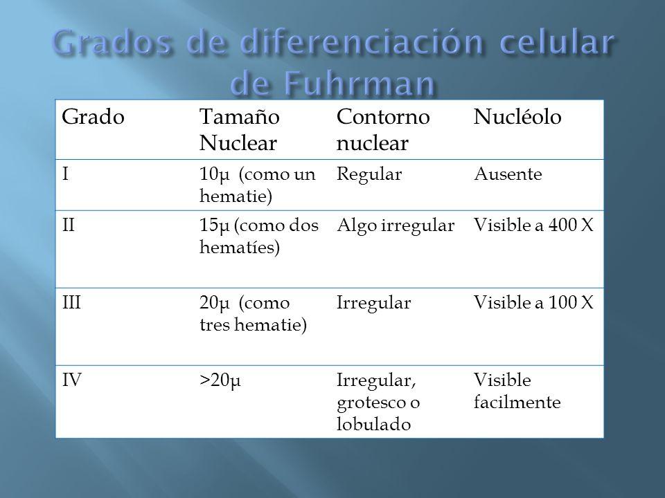 GradoTamaño Nuclear Contorno nuclear Nucléolo I10 μ (como un hematie) RegularAusente II15 μ (como dos hematíes) Algo irregularVisible a 400 X III20 μ