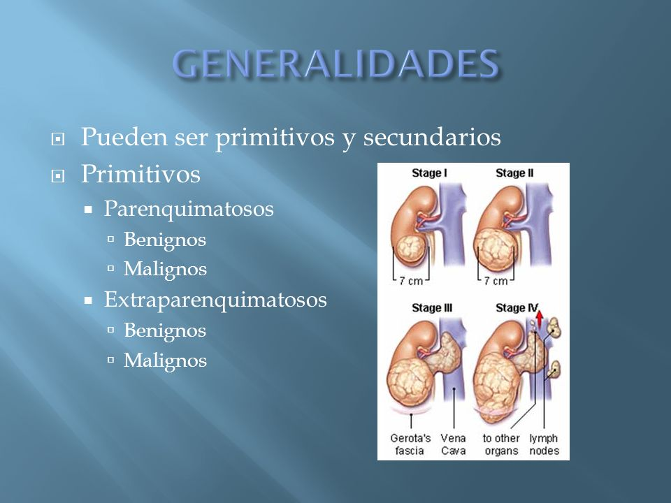 Pueden ser primitivos y secundarios Primitivos Parenquimatosos Benignos Malignos Extraparenquimatosos Benignos Malignos