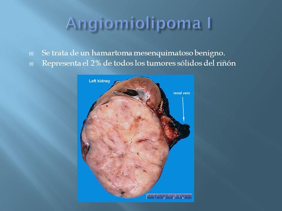 Se trata de un hamartoma mesenquimatoso benigno. Representa el 2% de todos los tumores sólidos del riñón