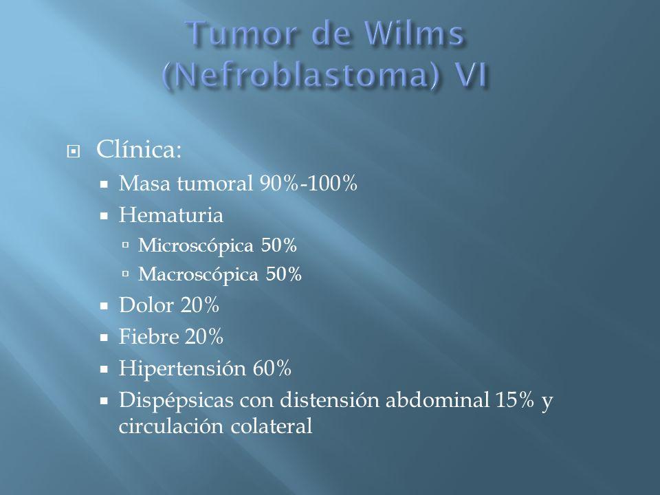 Clínica: Masa tumoral 90%-100% Hematuria Microscópica 50% Macroscópica 50% Dolor 20% Fiebre 20% Hipertensión 60% Dispépsicas con distensión abdominal