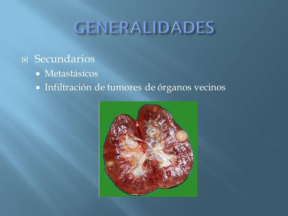 Secundarios Metastásicos Infiltración de tumores de órganos vecinos