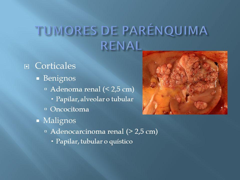 Corticales Benignos Adenoma renal (< 2,5 cm) Papilar, alveolar o tubular Oncocitoma Malignos Adenocarcinoma renal (> 2,5 cm) Papilar, tubular o quísti