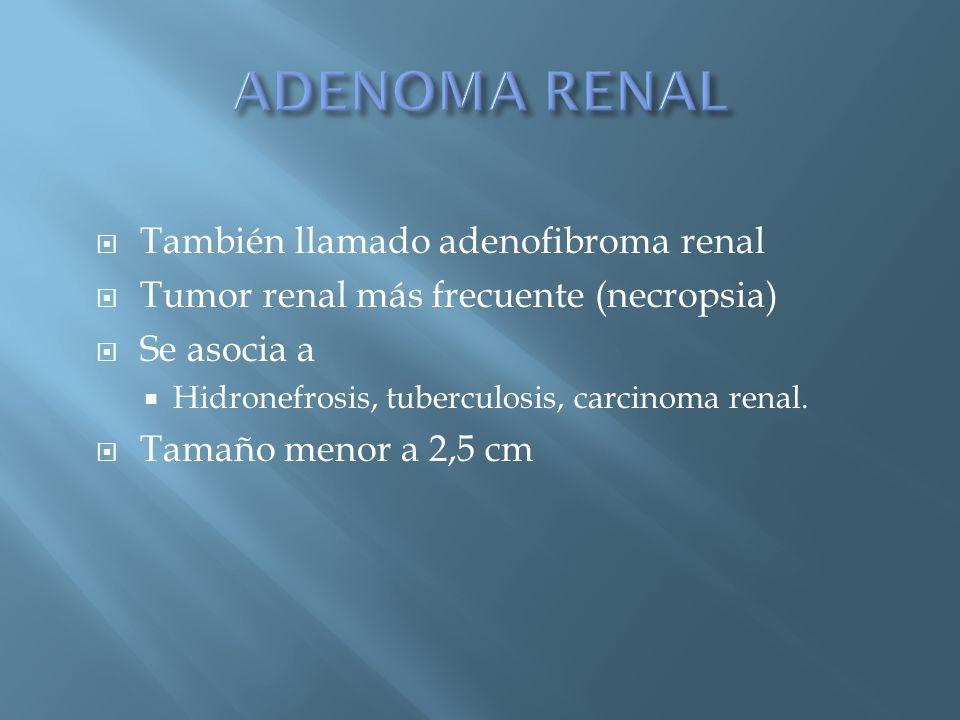 También llamado adenofibroma renal Tumor renal más frecuente (necropsia) Se asocia a Hidronefrosis, tuberculosis, carcinoma renal. Tamaño menor a 2,5