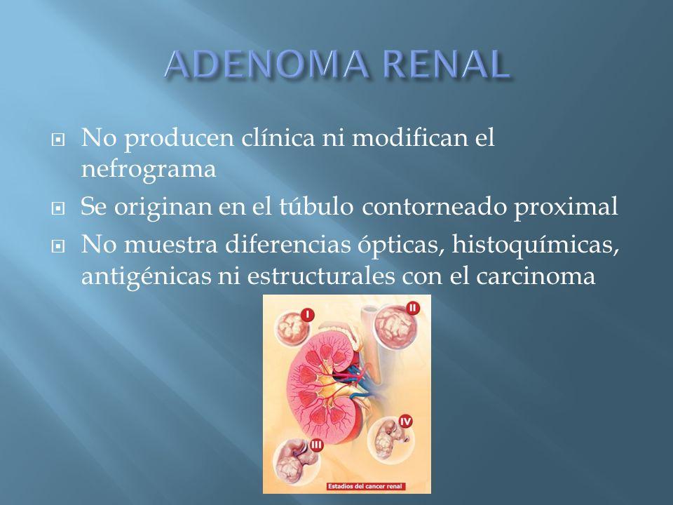 No producen clínica ni modifican el nefrograma Se originan en el túbulo contorneado proximal No muestra diferencias ópticas, histoquímicas, antigénica