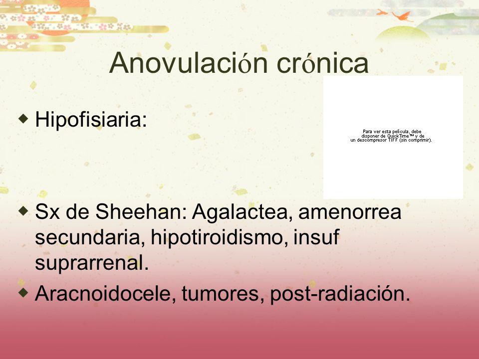 Anovulaci ó n cr ó nica Hipofisiaria: Sx de Sheehan: Agalactea, amenorrea secundaria, hipotiroidismo, insuf suprarrenal. Aracnoidocele, tumores, post-