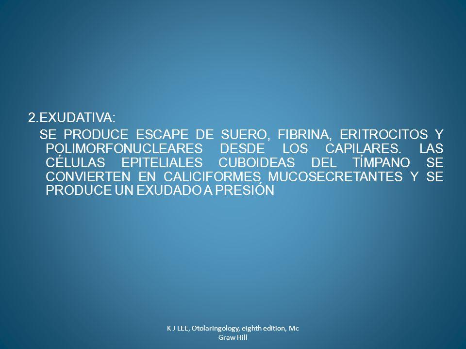 2.EXUDATIVA: SE PRODUCE ESCAPE DE SUERO, FIBRINA, ERITROCITOS Y POLIMORFONUCLEARES DESDE LOS CAPILARES. LAS CÉLULAS EPITELIALES CUBOIDEAS DEL TÍMPANO