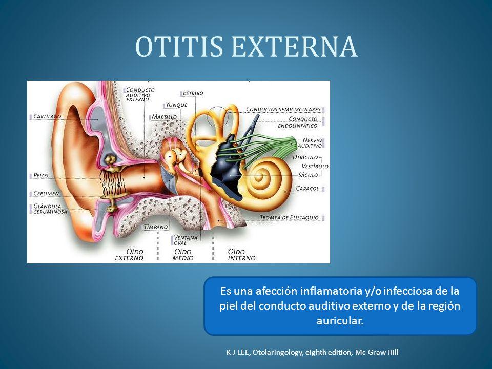 OTITIS EXTERNA K J LEE, Otolaringology, eighth edition, Mc Graw Hill Es una afección inflamatoria y/o infecciosa de la piel del conducto auditivo exte
