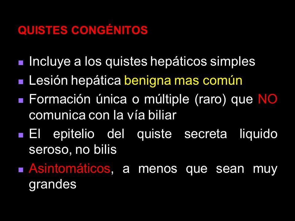 Cistadenoma NEOPLASIAS QUISTICAS DEL HIGADO