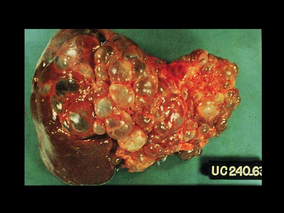 ETIOLOGIA Una vez dentro del parénquima hepático, se desarrollan sitios microscópicos de trombosis, citólisis y licuefacción (hepatitis amebiana).