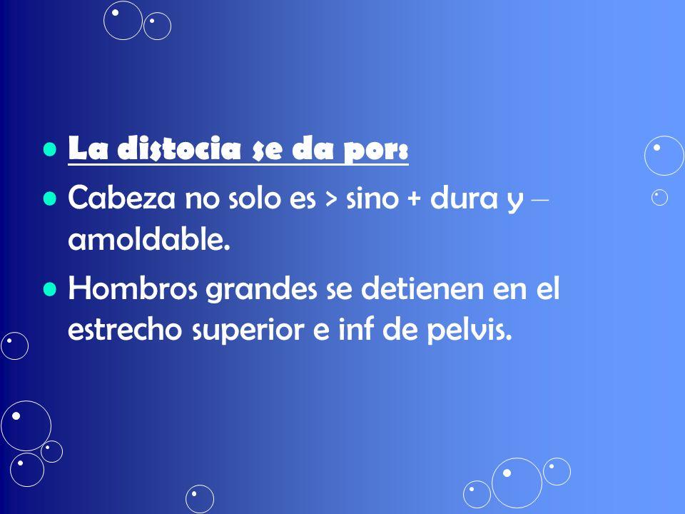 La distocia se da por: Cabeza no solo es > sino + dura y – amoldable. Hombros grandes se detienen en el estrecho superior e inf de pelvis.