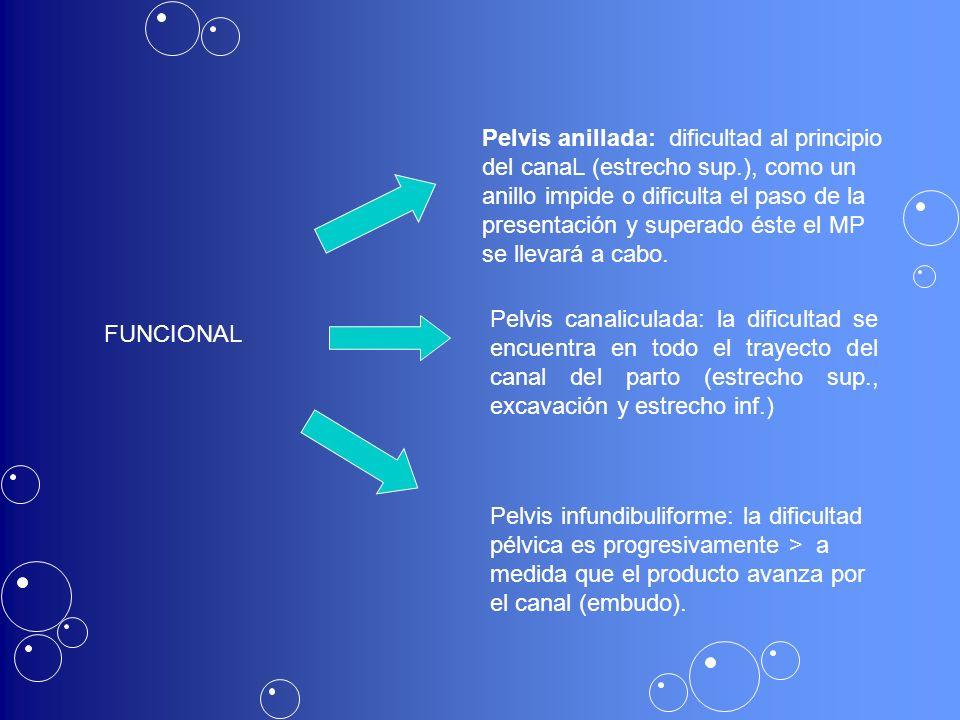 FUNCIONAL Pelvis anillada: dificultad al principio del canaL (estrecho sup.), como un anillo impide o dificulta el paso de la presentación y superado