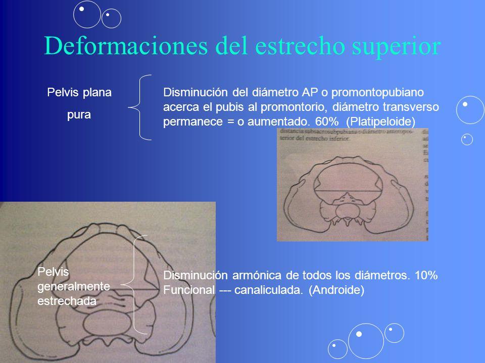 Deformaciones del estrecho superior Pelvis plana pura Disminución del diámetro AP o promontopubiano acerca el pubis al promontorio, diámetro transverso permanece = o aumentado.