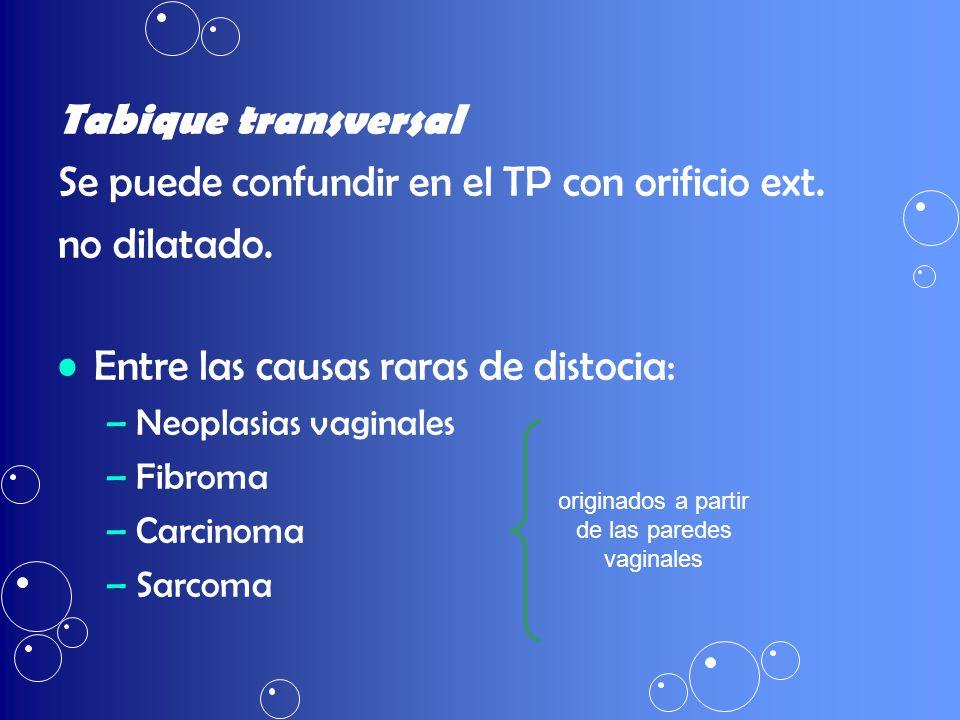Tabique transversal Se puede confundir en el TP con orificio ext. no dilatado. Entre las causas raras de distocia: –Neoplasias vaginales –Fibroma –Car