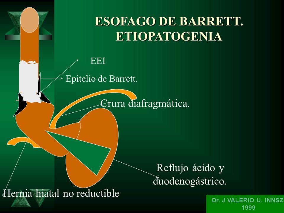 ESOFAGO DE BARETT. (DEFINICION). t ES UNA CONDICION ADQUIRIDA CARATERI- ZADA POR EL REEMPLAZAMIENTO DEL EPI- TELIO ESCAMOSO NORMAL DEL ESOFAGO DISTAL