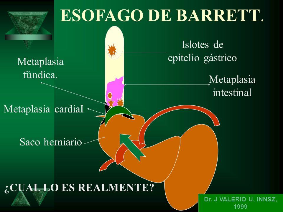ENDOSCOPIA BARRETT LARGO 2