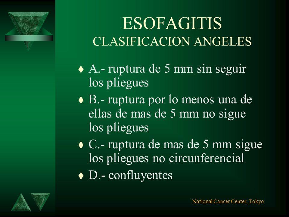 ESOFAGITIS CLASIFICACION SAVARY MILLER I.-lesión unica erosiva o exudativa oval o lineal que afecta solo un pliegue longitudinal II.-erosiones multipl
