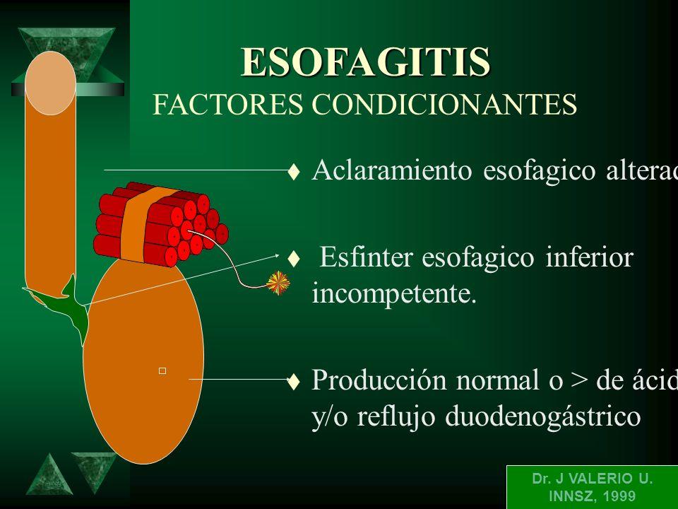 ESOFAGITIS CLASIFICACION ANGELES t A.- ruptura de 5 mm sin seguir los pliegues t B.- ruptura por lo menos una de ellas de mas de 5 mm no sigue los pli
