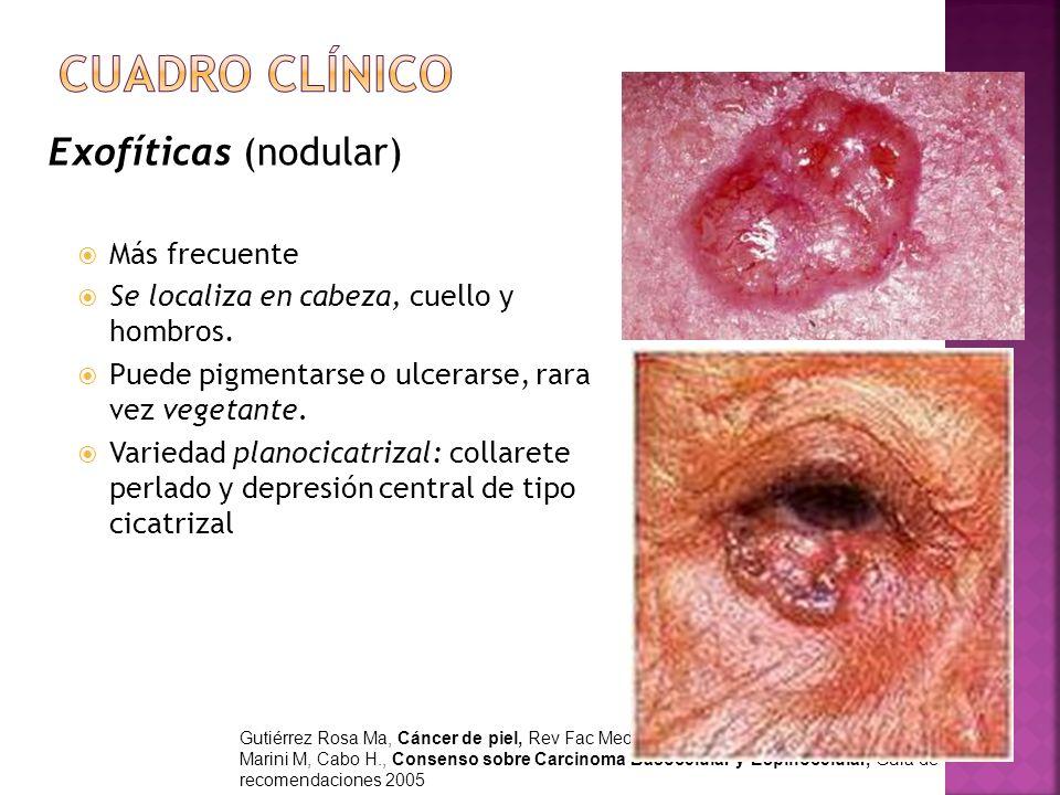 Exofíticas (nodular) Más frecuente Se localiza en cabeza, cuello y hombros. Puede pigmentarse o ulcerarse, rara vez vegetante. Variedad planocicatriza
