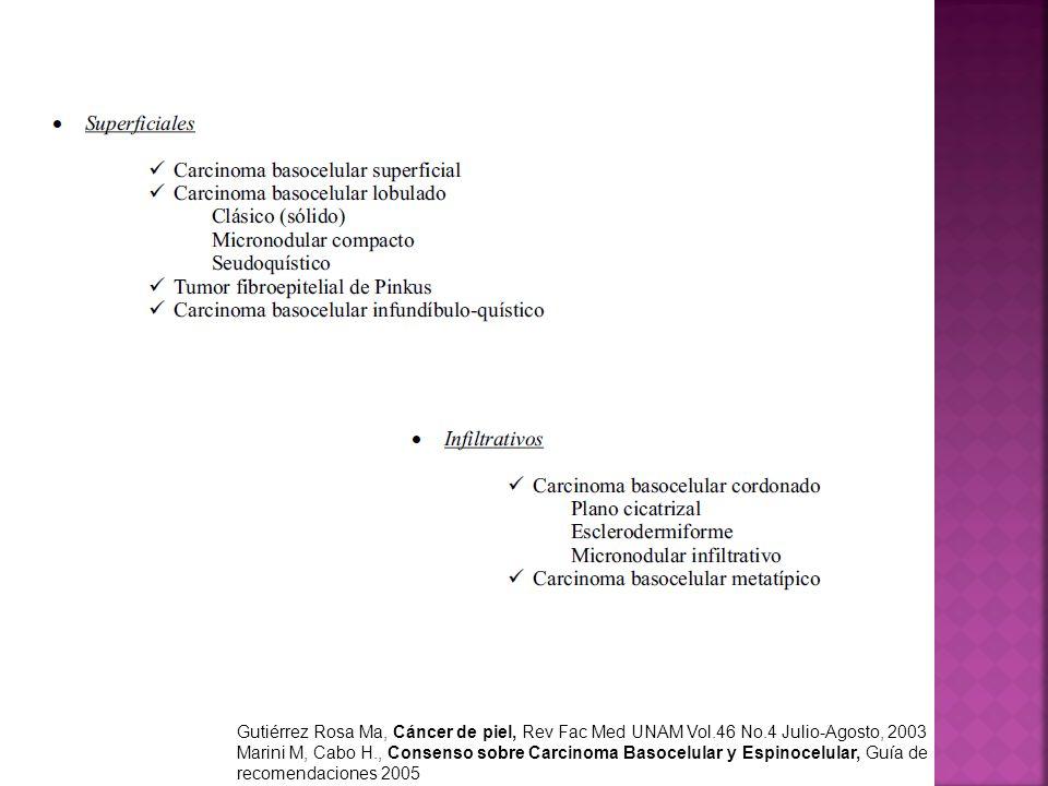 Gutiérrez Rosa Ma, Cáncer de piel, Rev Fac Med UNAM Vol.46 No.4 Julio-Agosto, 2003 Marini M, Cabo H., Consenso sobre Carcinoma Basocelular y Espinocel
