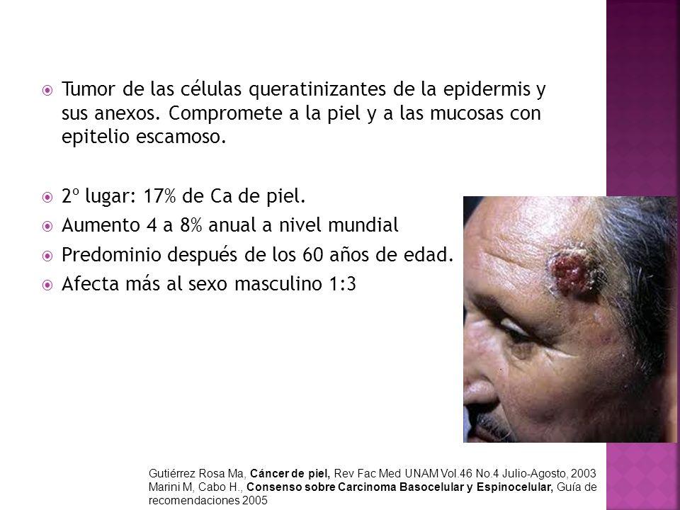 Tumor de las células queratinizantes de la epidermis y sus anexos. Compromete a la piel y a las mucosas con epitelio escamoso. 2º lugar: 17% de Ca de