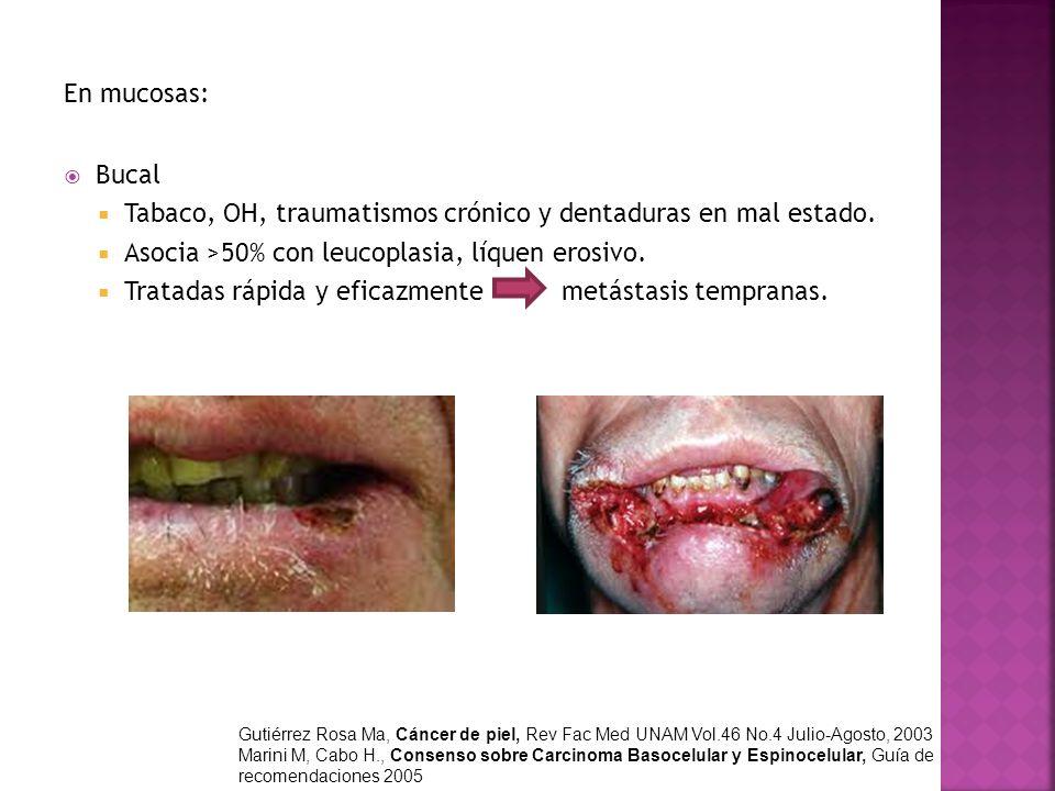 En mucosas: Bucal Tabaco, OH, traumatismos crónico y dentaduras en mal estado. Asocia >50% con leucoplasia, líquen erosivo. Tratadas rápida y eficazme