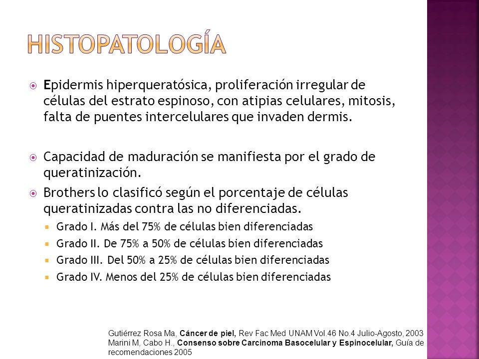 Epidermis hiperqueratósica, proliferación irregular de células del estrato espinoso, con atipias celulares, mitosis, falta de puentes intercelulares q
