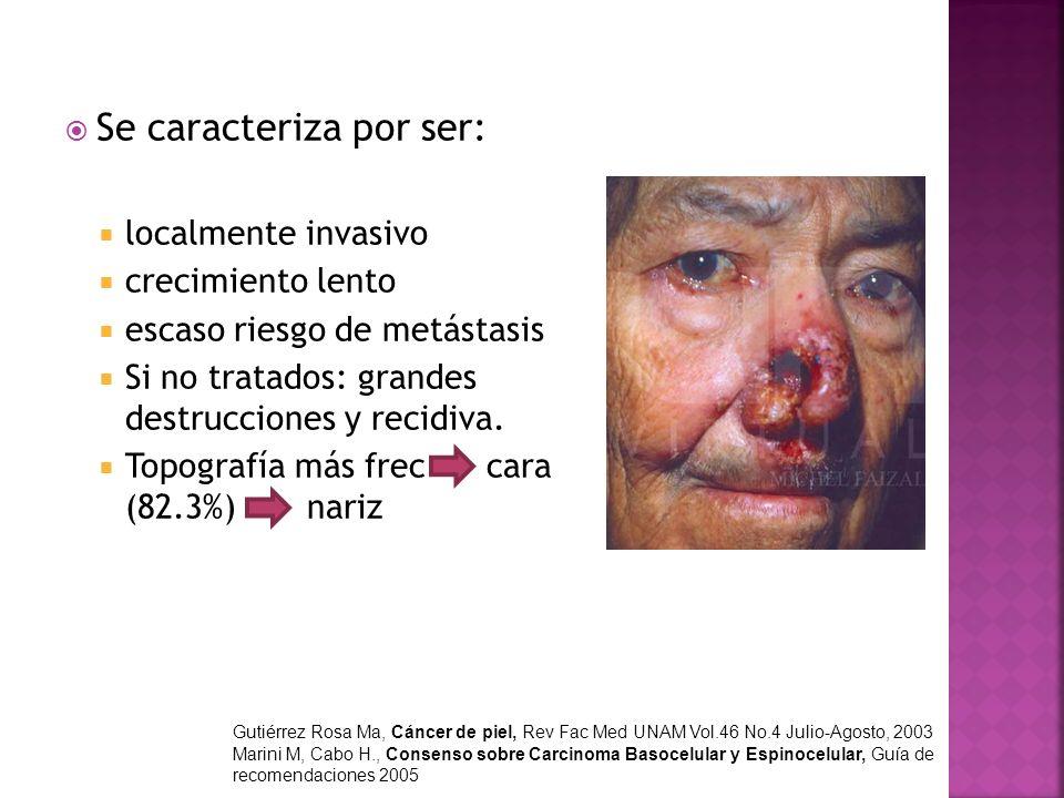 Mayor recurrencia tumoral e invasión: periocular, nariz, surco nasogeniano, pabellón auricular (pre y retro), piel cabelludo.