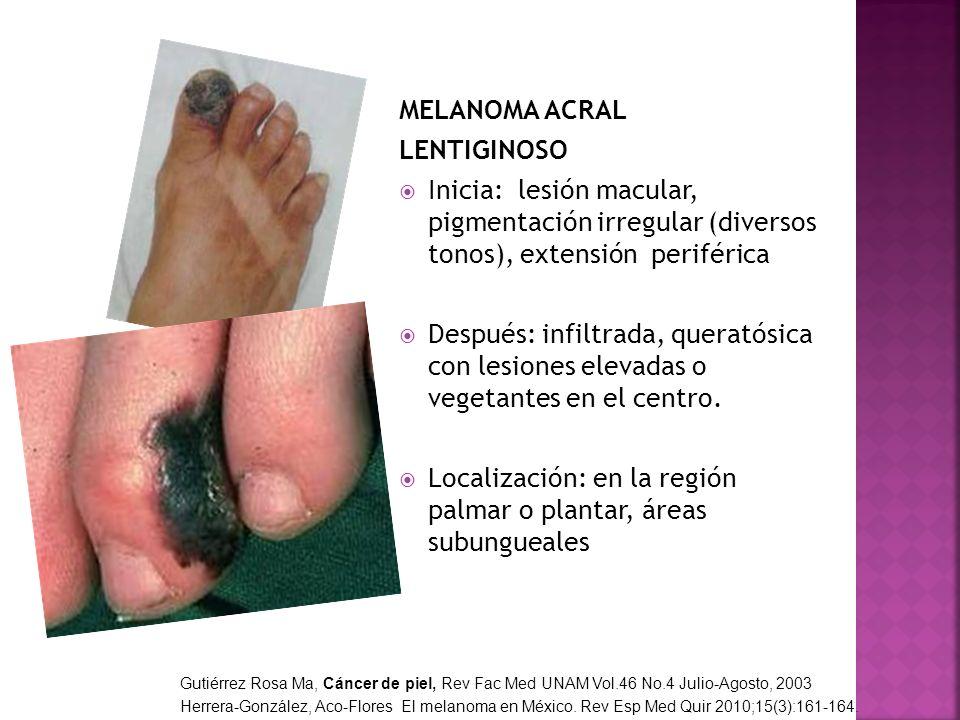 MELANOMA ACRAL LENTIGINOSO Inicia: lesión macular, pigmentación irregular (diversos tonos), extensión periférica Después: infiltrada, queratósica con