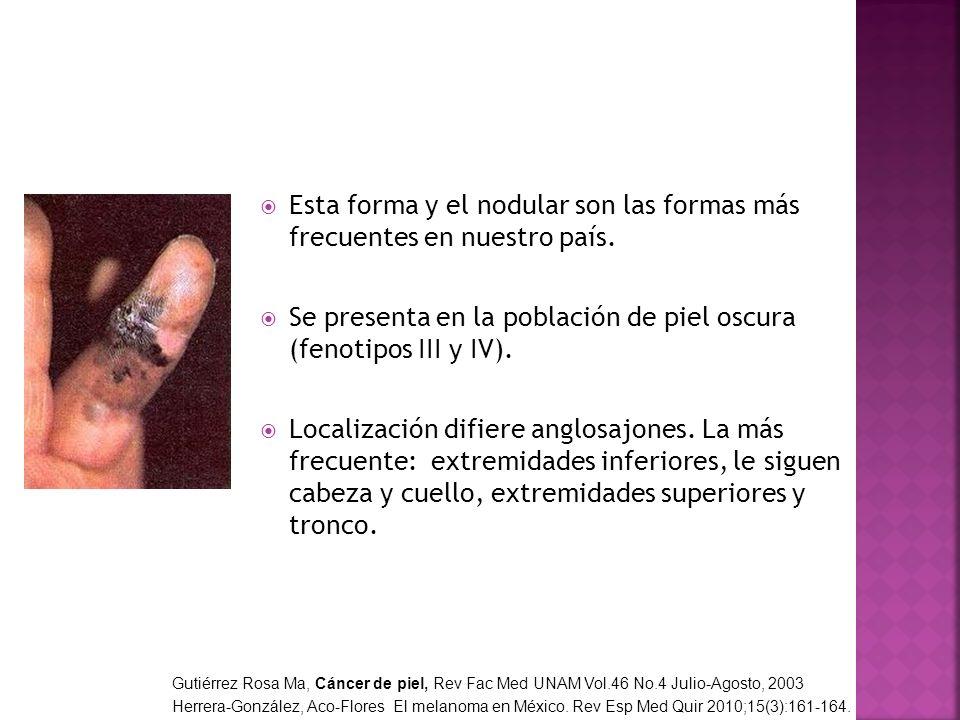 Esta forma y el nodular son las formas más frecuentes en nuestro país. Se presenta en la población de piel oscura (fenotipos III y IV). Localización d