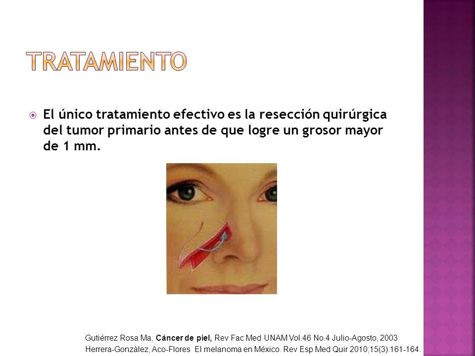 El único tratamiento efectivo es la resección quirúrgica del tumor primario antes de que logre un grosor mayor de 1 mm. Gutiérrez Rosa Ma, Cáncer de p