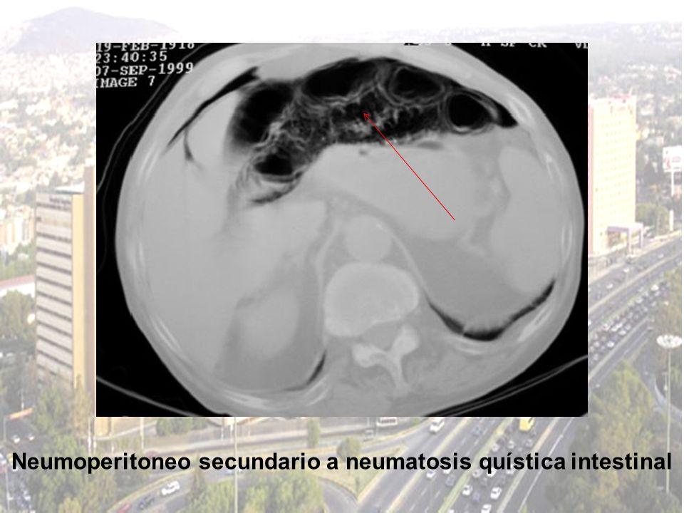 Neumoperitoneo secundario a neumatosis quística intestinal