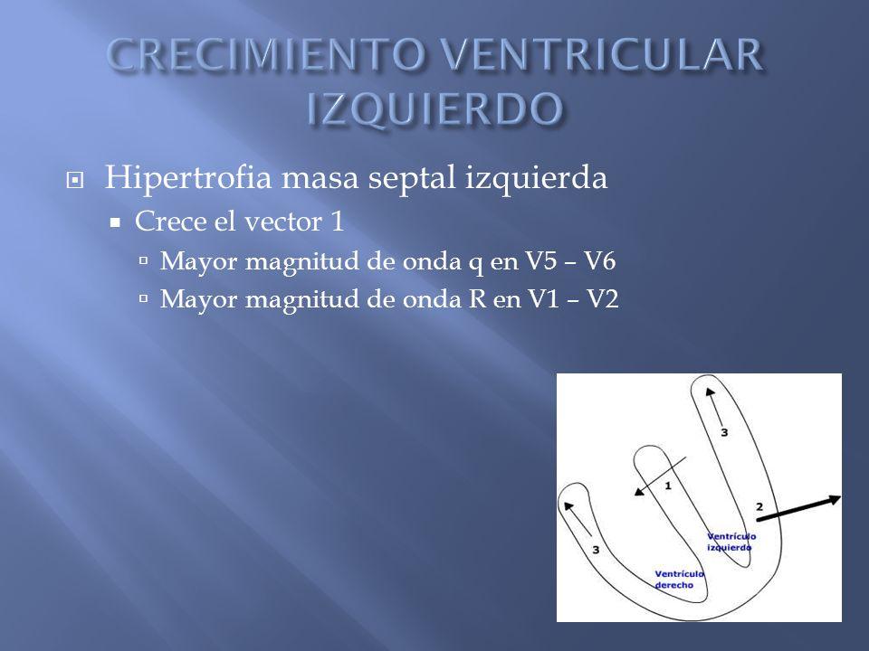 Hipertrofia masa septal izquierda Crece el vector 1 Mayor magnitud de onda q en V5 – V6 Mayor magnitud de onda R en V1 – V2