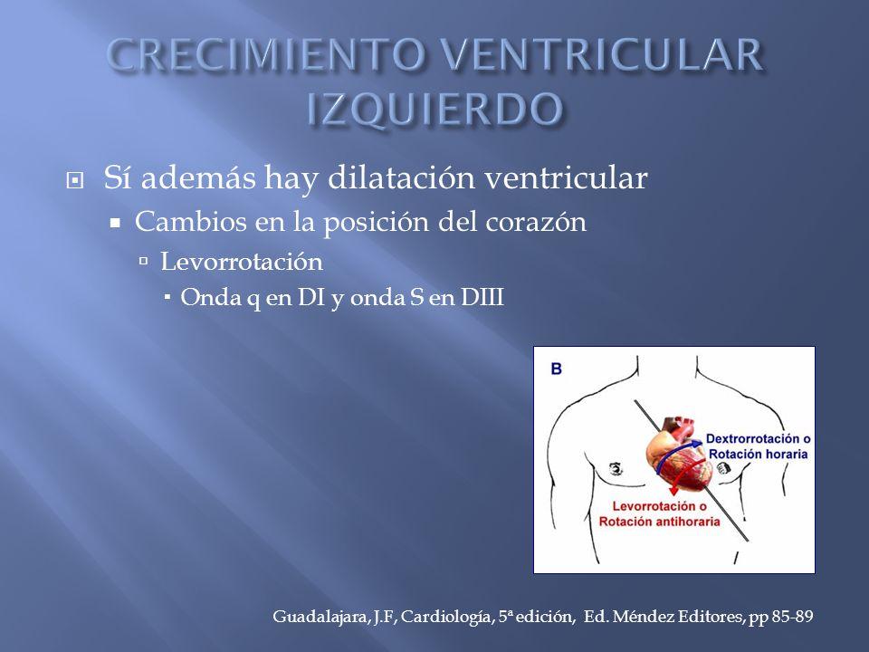 Sí además hay dilatación ventricular Cambios en la posición del corazón Levorrotación Onda q en DI y onda S en DIII Guadalajara, J.F, Cardiología, 5ª edición, Ed.