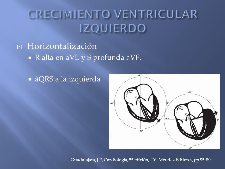 Horizontalización R alta en aVL y S profunda aVF.