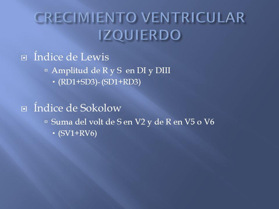 Índice de Lewis Amplitud de R y S en DI y DIII (RD1+SD3)- (SD1+RD3) Índice de Sokolow Suma del volt de S en V2 y de R en V5 o V6 (SV1+RV6)