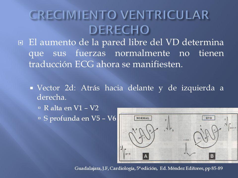 El aumento de la pared libre del VD determina que sus fuerzas normalmente no tienen traducción ECG ahora se manifiesten.