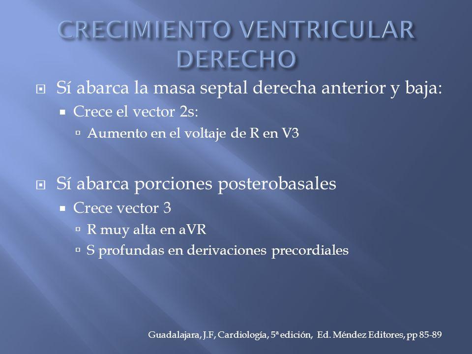 Sí abarca la masa septal derecha anterior y baja: Crece el vector 2s: Aumento en el voltaje de R en V3 Sí abarca porciones posterobasales Crece vector 3 R muy alta en aVR S profundas en derivaciones precordiales Guadalajara, J.F, Cardiología, 5ª edición, Ed.