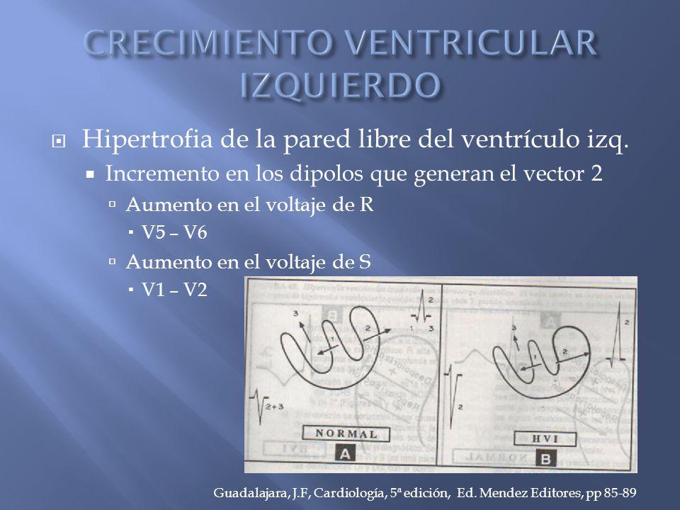 Hipertrofia de la pared libre del ventrículo izq.