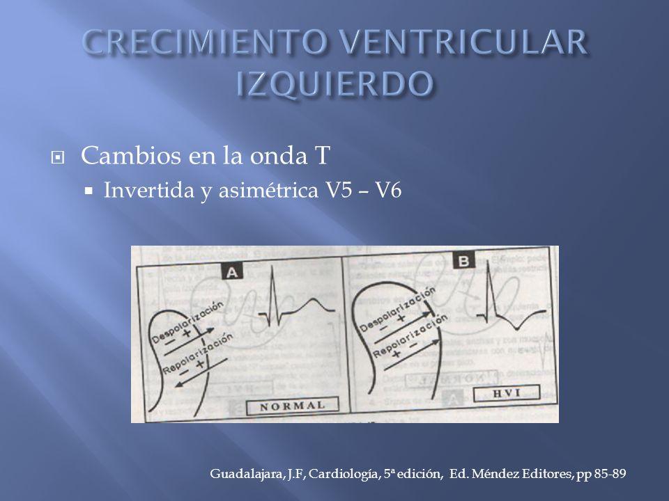 Cambios en la onda T Invertida y asimétrica V5 – V6 Guadalajara, J.F, Cardiología, 5ª edición, Ed.
