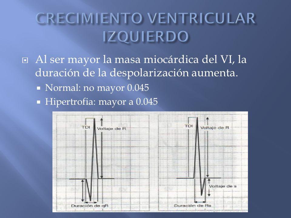 Al ser mayor la masa miocárdica del VI, la duración de la despolarización aumenta.
