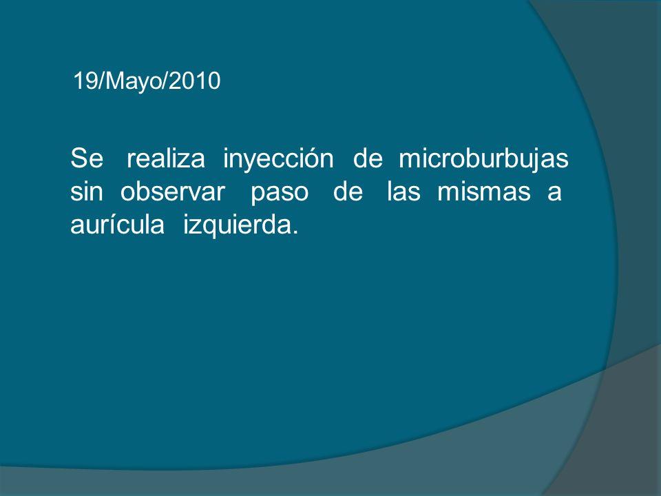 19/Mayo/2010 Se realiza inyección de microburbujas sin observar paso de las mismas a aurícula izquierda.