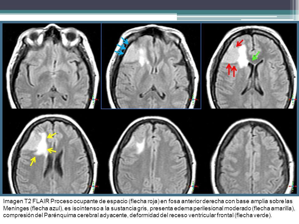 Imagen T2 FLAIR Proceso ocupante de espacio (flecha roja) en fosa anterior derecha con base amplia sobre las Meninges (flecha azul), es isointenso a la sustancia gris, presenta edema perilesional moderado (flecha amarilla), compresión del Parénquima cerebral adyacente, deformidad del receso ventricular frontal (flecha verde).