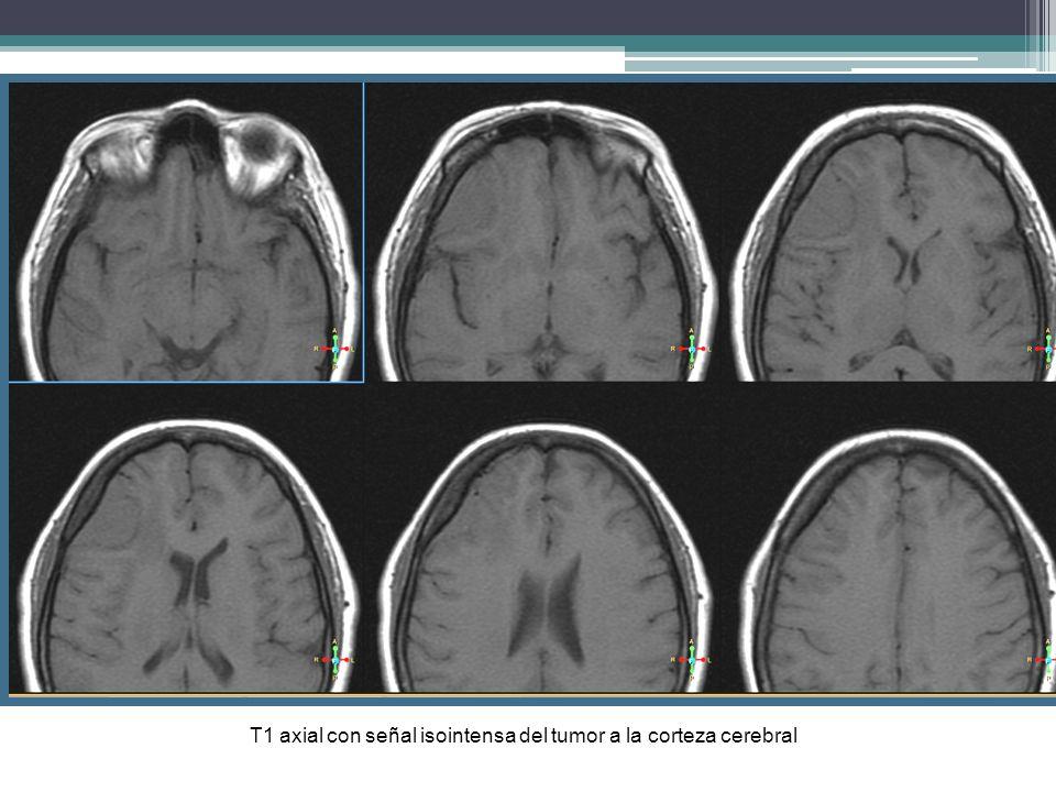 T1 axial con señal isointensa del tumor a la corteza cerebral