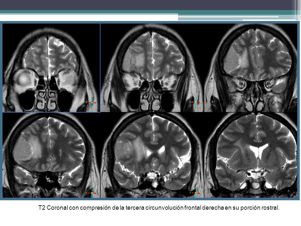 T2 Coronal con compresión de la tercera circunvolución frontal derecha en su porción rostral.